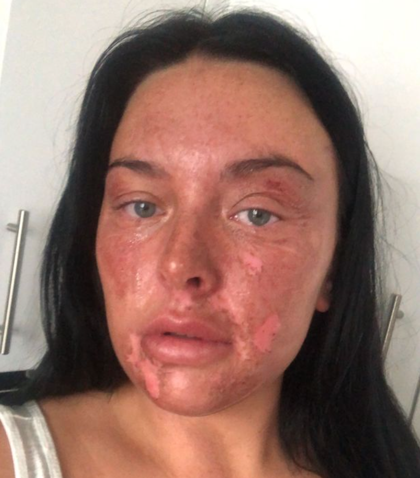 How poaching an egg left this Bolton woman with severe facial burns, The Manc