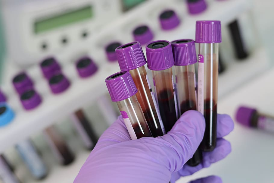 NHS begins trailing 'revolutionary' blood tests that can detect more than 50 types of cancer, The Manc